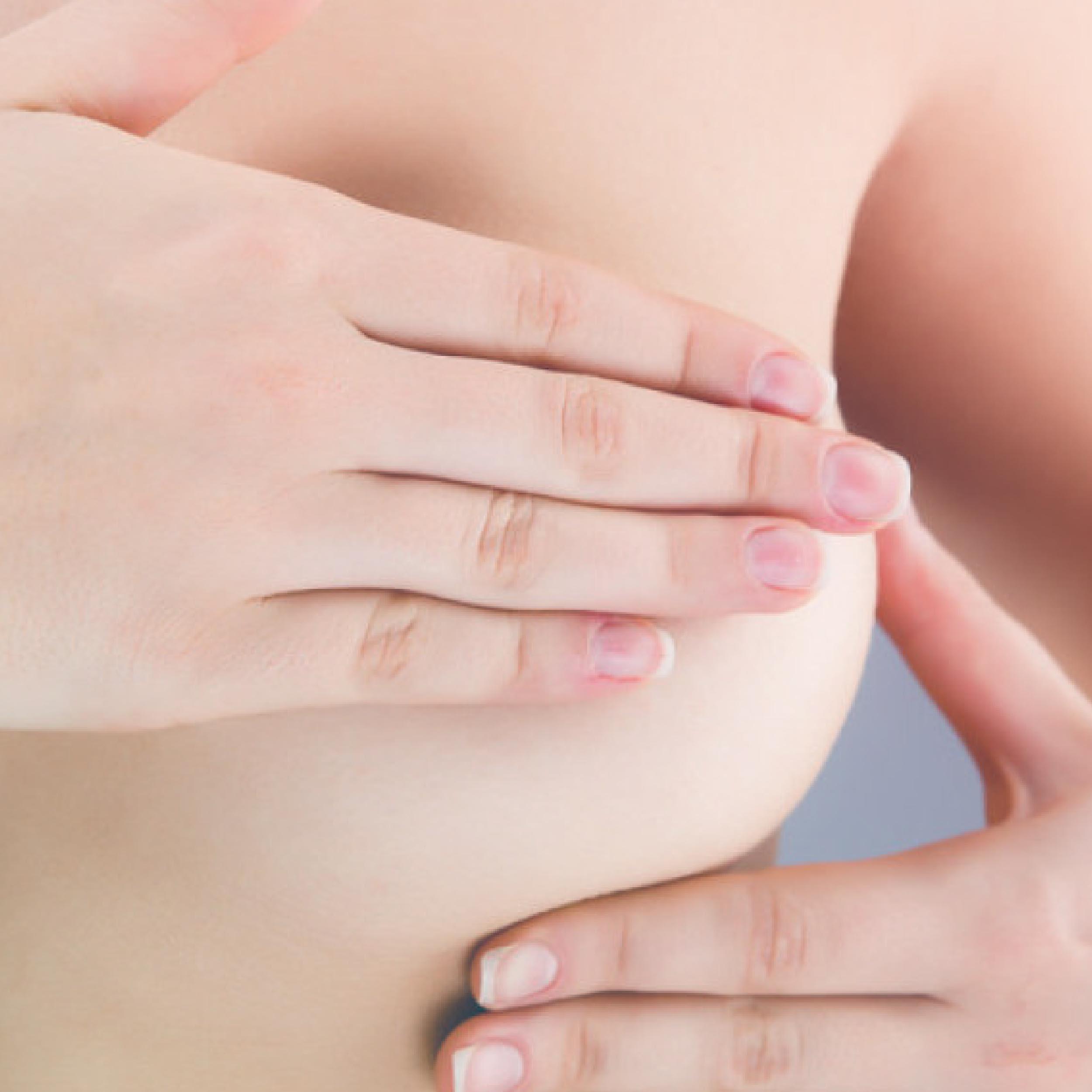 Neoplasia da Mama - Câncer de Mama